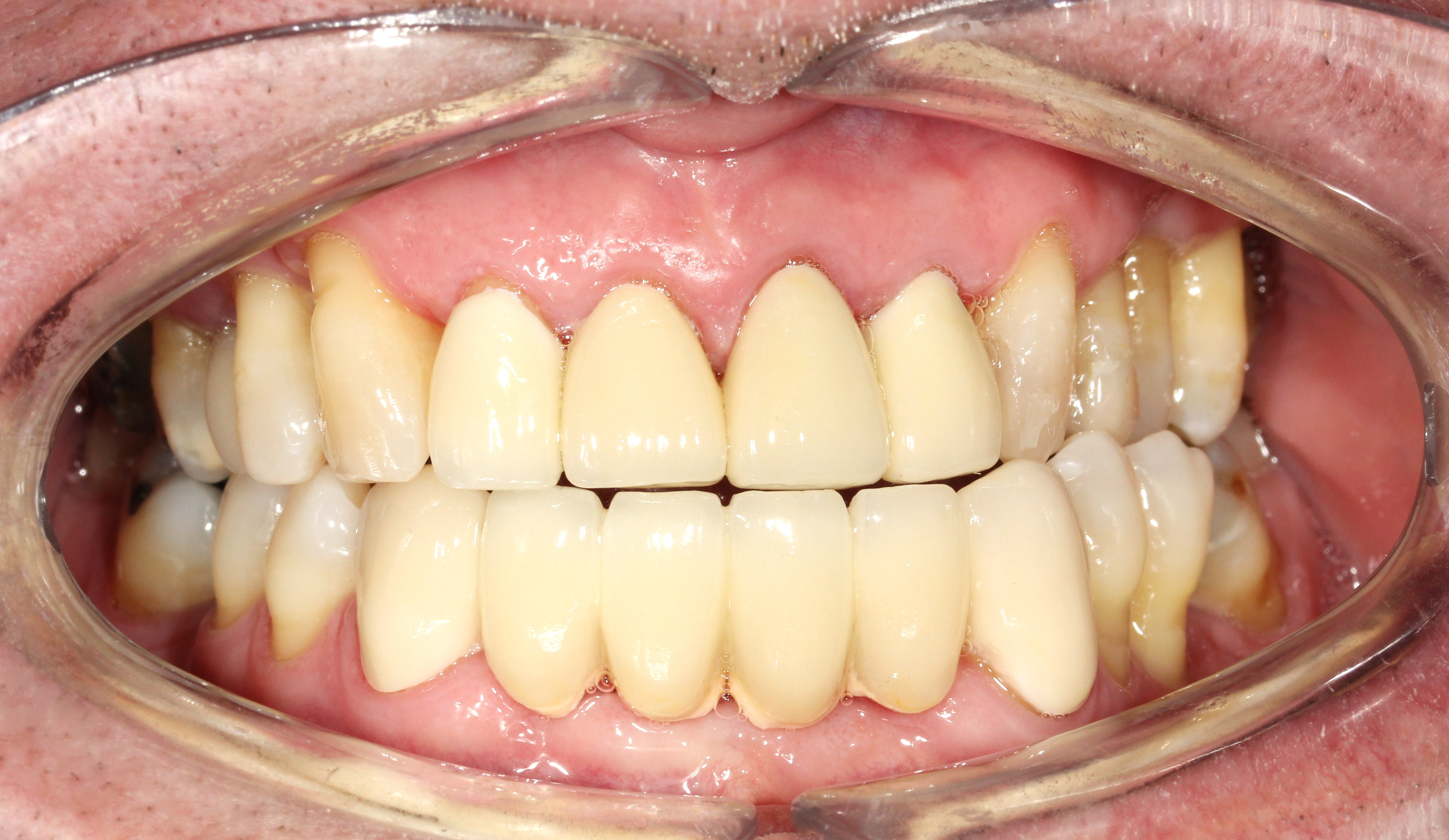 Mr Jane Was Unhappy With His Appearance Anterior Old Crowns And Bridge 6 Units Lower Were Replaced 1 Year Ago 4 Upper